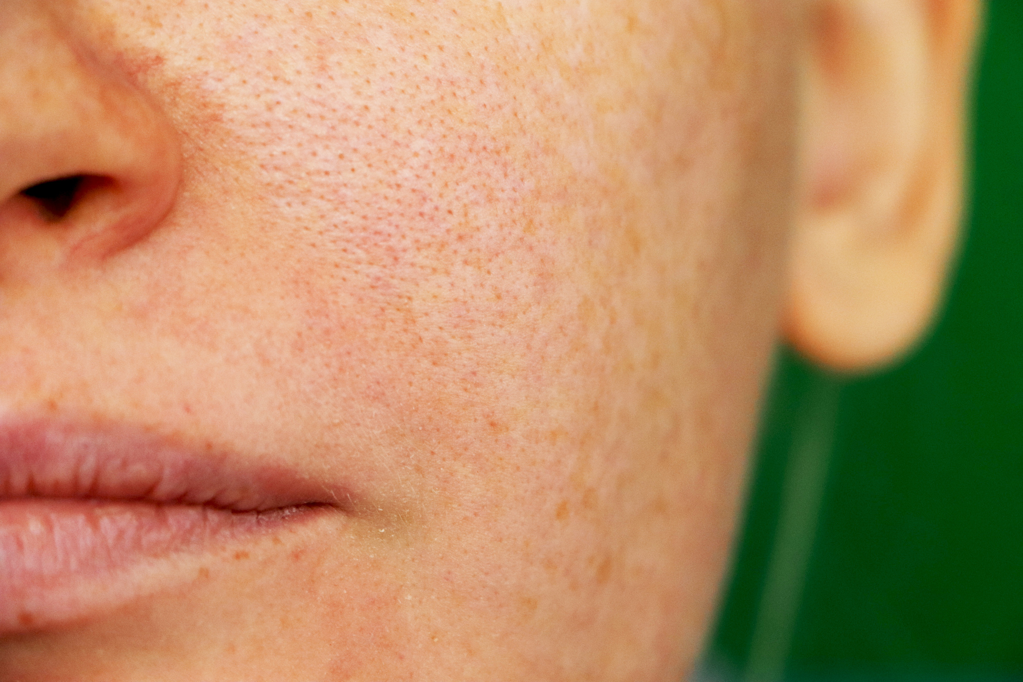 How to Shrink Your Large Pores and Invigorate Your Skin ...